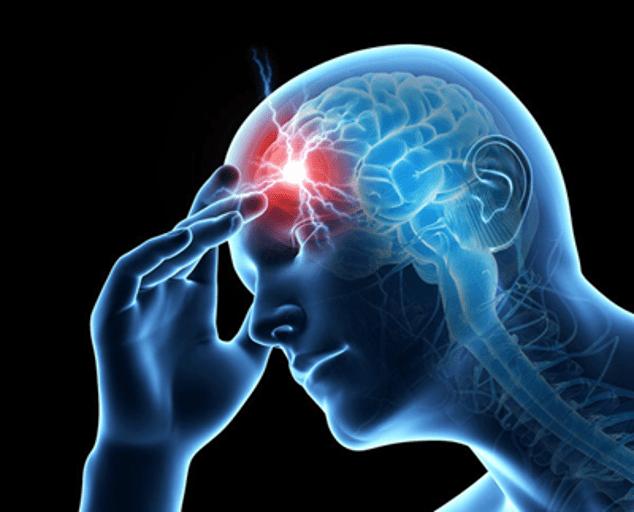 tens unit for migraine 1