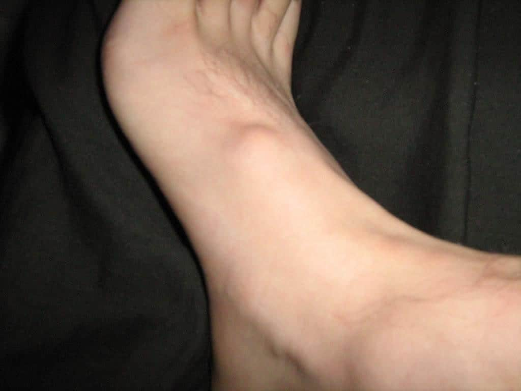 foot bump due to Ganglion Cysts