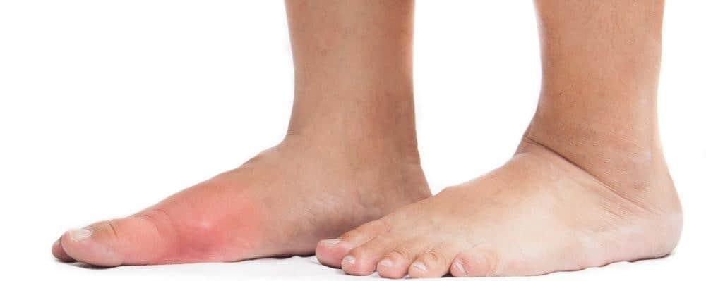 foot bump pain