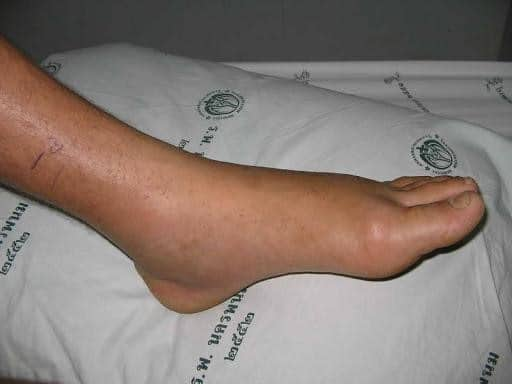 lateral foot pain sprained ankle