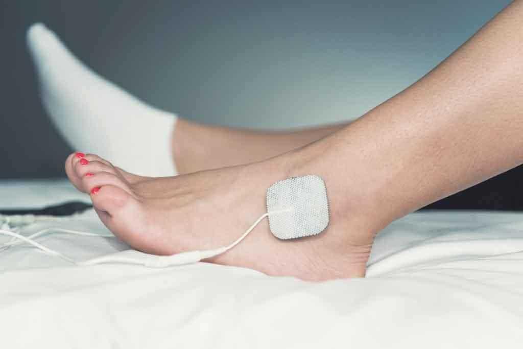 tens foot neuropathy