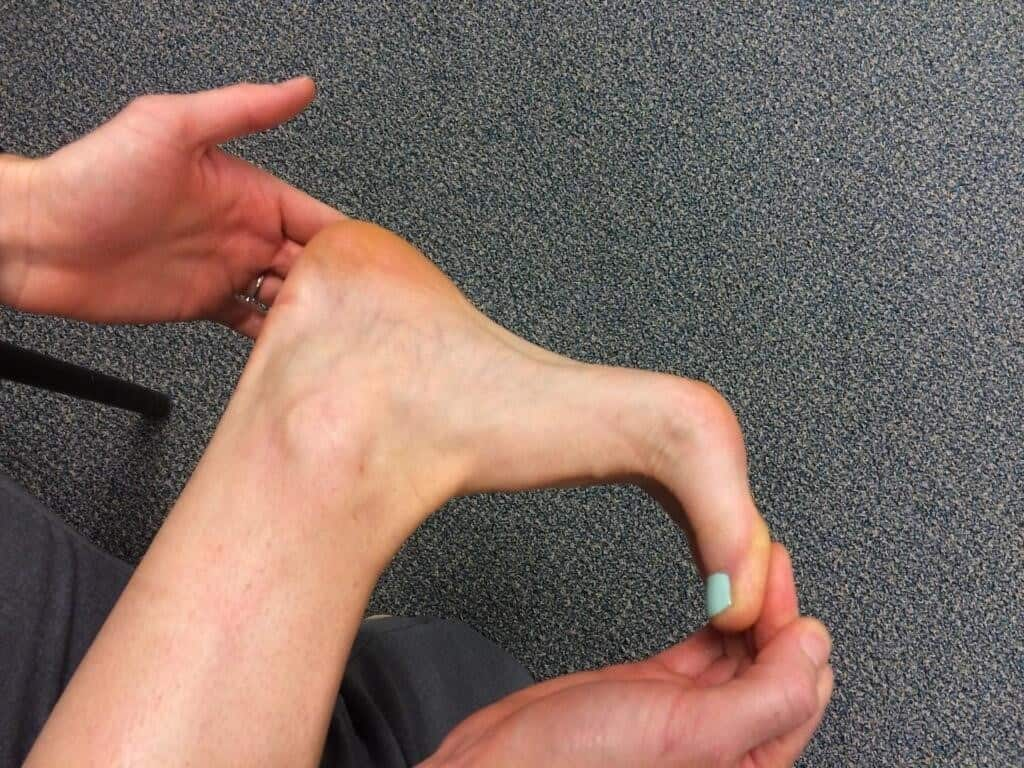 toe extension 1